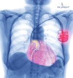 Chest X-ray or X-Ray Image Of Human Chest with pacemaker placement