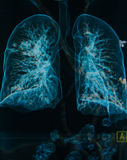 Chest X-rays lungs 3d image Royalty Free Stock Photography