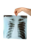 Chest xray Stock Photos