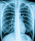 Chest Xray. Frontal view chest X ray of a healthy young adult Royalty Free Stock Photography