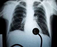Chest xray. Chest frontal xray image for medical diagnosis stock images