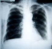 Chest xray. Chest frontal xray image for medical diagnosis royalty free stock image