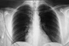 Chest Xray. Close up a chest xray royalty free stock images