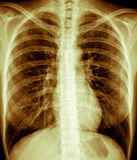 Chest Xray,Female. Frontal view chest X ray of a healthy young female Royalty Free Stock Images