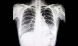 Pneumonia Chest Film. Chest xray film of a patient having pneumonia in his left lung stock photography