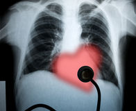 Chest xray and heart. For valentines holiday stock photography