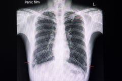 a chest xray with multiple nodular infiltrations in the lungs stock image