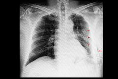 A chest xray of a patient with rib fractures and pleural effusion and subcutaneous emphysema. A chest xray film of a patient with old multiple left rib fractures stock photo