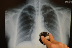 Chest xray x-ray. Holding a stethoscope for auscultation Stock Photo