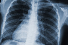 Chest xray scan Stock Image