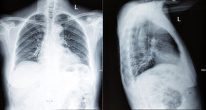Chest xray scan. A chest xray scan for a medical diagnosis,front and side stock photography