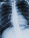 Chest xray scan Royalty Free Stock Photography