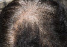 Cheveux démarrant à la perte, macro Images stock