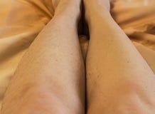 Cheveux sur les jambes des femmes, ?pilation avant et apr?s images stock