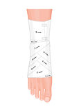 Cheville de bandage illustration libre de droits
