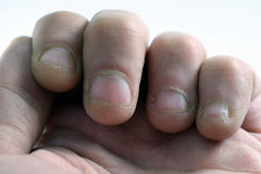 Chewed fingernails Royalty Free Stock Images