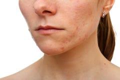 Chica joven con problema de piel Fotografía de archivo