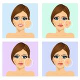 Chica joven con un problema y piel limpia de la cara libre illustration