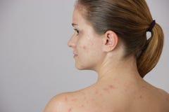 Chica joven hermosa con acné en su cara y la parte posterior en un whi Imagen de archivo libre de regalías