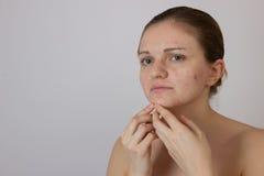 Chica joven hermosa con acné en su cara y la parte posterior en un whi Foto de archivo