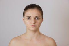 Chica joven hermosa con acné en su cara y la parte posterior en un whi Foto de archivo libre de regalías