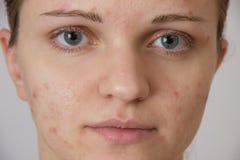 Chica joven hermosa con acné en su cara y la parte posterior en un whi Fotos de archivo