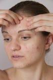 Chica joven hermosa con acné en su cara y la parte posterior en un whi Imágenes de archivo libres de regalías