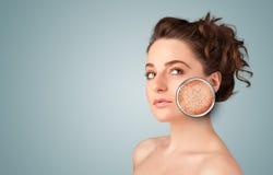 Chica joven hermosa con la lupa del daño de la piel Imagen de archivo