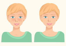 Chica joven linda alegre con las pecas y la misma muchacha sin el franco Imágenes de archivo libres de regalías