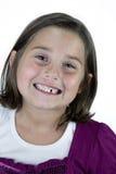 Chica joven sonriente con el diente que falta imagen de archivo