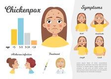 Chicckenpox infographic διανυσματική απεικόνιση