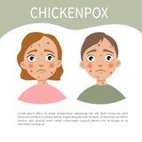 Chicckenpox infographic illustrazione vettoriale