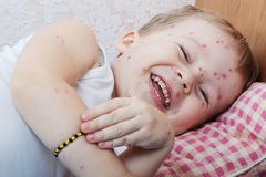 Chickenpox Royalty Free Stock Photo