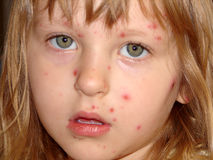 Chickenpox Stock Photos
