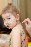 chickenpox choroba Obrazy Royalty Free