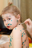 Chickenpox illness Royalty Free Stock Images