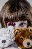 Child abuse concept, Sad girl. Violence, despair. Royalty Free Stock Image
