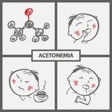Child with Acetonemia Symptoms Icons Stock Photos