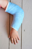 Child with arm cast Stock Image