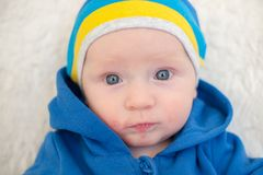 A child with atopic dermatitis Stock Photography