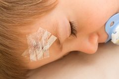 A child with a band-aid on stitched forehead. In an accident Royalty Free Stock Photo