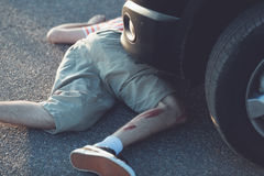 Child with bloody leg in front of stopped car Royalty Free Stock Photo
