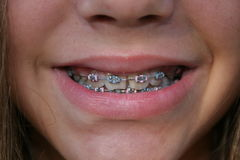Child with braces. Up close shot up child with braces Royalty Free Stock Photos