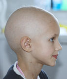 Child with cancer. Profile of a caucasian child showing hair loss due to chemotherapy treatment for cancer Stock Photography