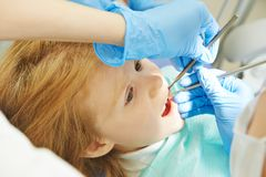 Child dental care Royalty Free Stock Photography