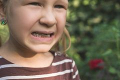 Child with a dental orthodontic device and without one tooth royalty free stock photography