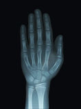 Child Hand X-Ray Unclosed Epiphysis. Child Hand X-Ray showing Unclosed Epiphysis bones stock image