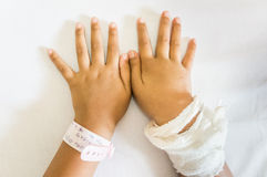 Child Hand Swollen After Infusion Royalty Free Stock Image