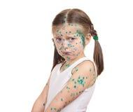 Child has the virus on skin Stock Photo