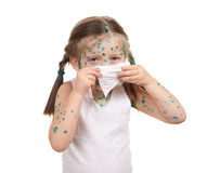 Child has the virus on skin Royalty Free Stock Images
